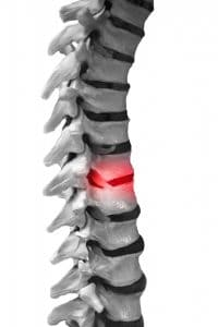 Spinal Cord Injuries and Their Effects on the Body
